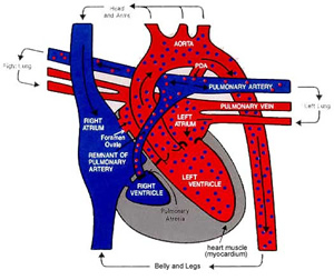 Hypoplastic Right Heart Syndrome